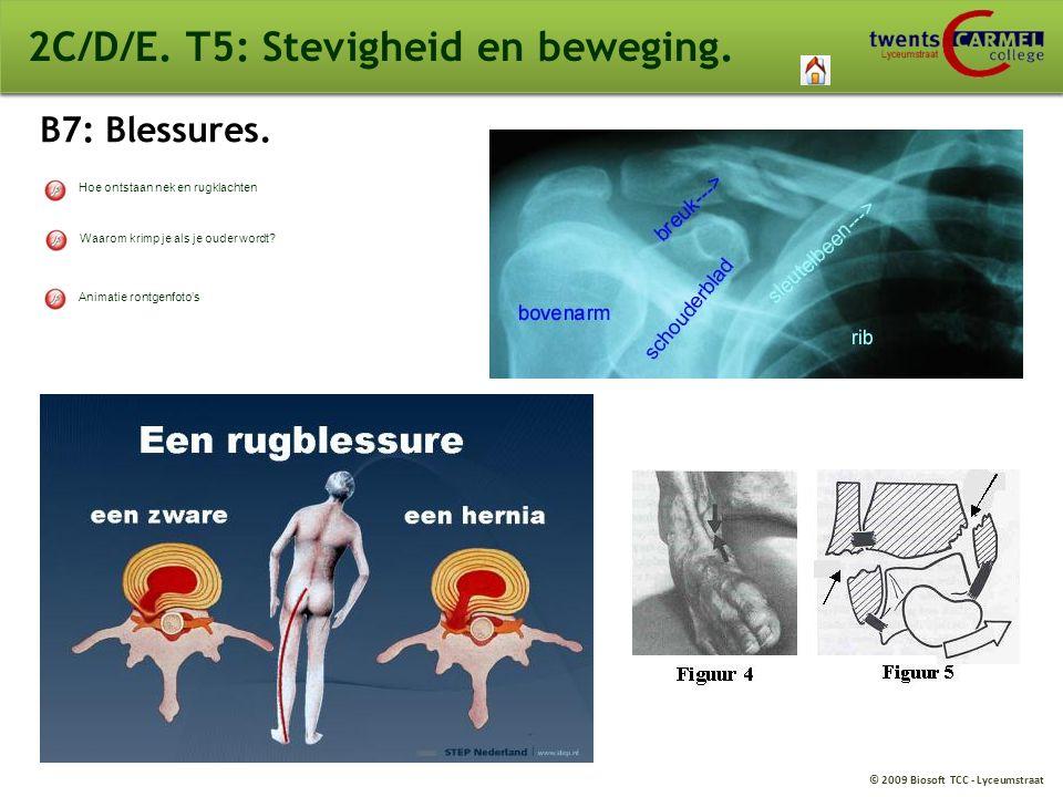© 2009 Biosoft TCC - Lyceumstraat 2C/D/E. T5: Stevigheid en beweging. B7: Blessures. Waarom krimp je als je ouder wordt? Hoe ontstaan nek en rugklacht