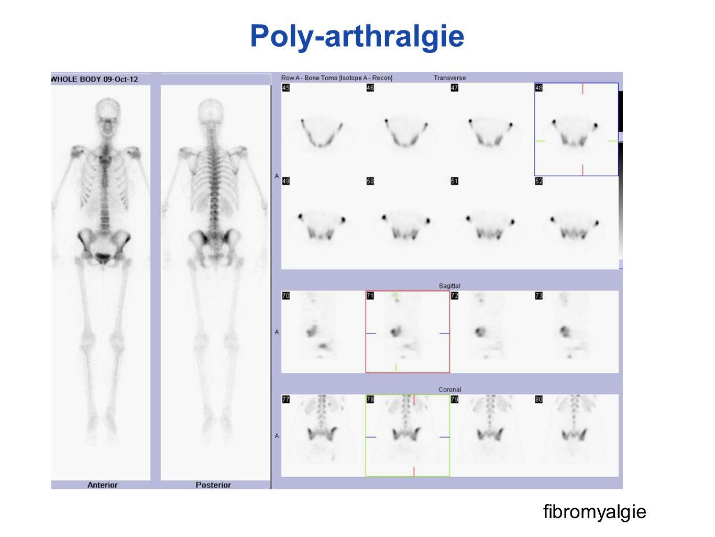 Poly-arthralgie fibromyalgie
