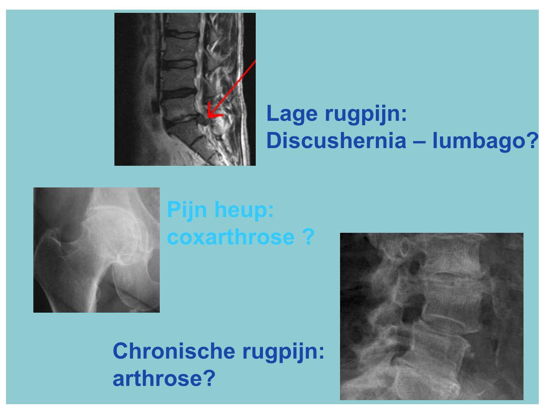 Lage rugpijn: Discushernia – lumbago? Chronische rugpijn: arthrose? Pijn heup: coxarthrose ?