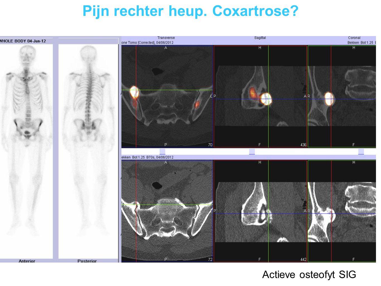 Chronische hielpijn rechts Posterieur impingement syndroom rechts links