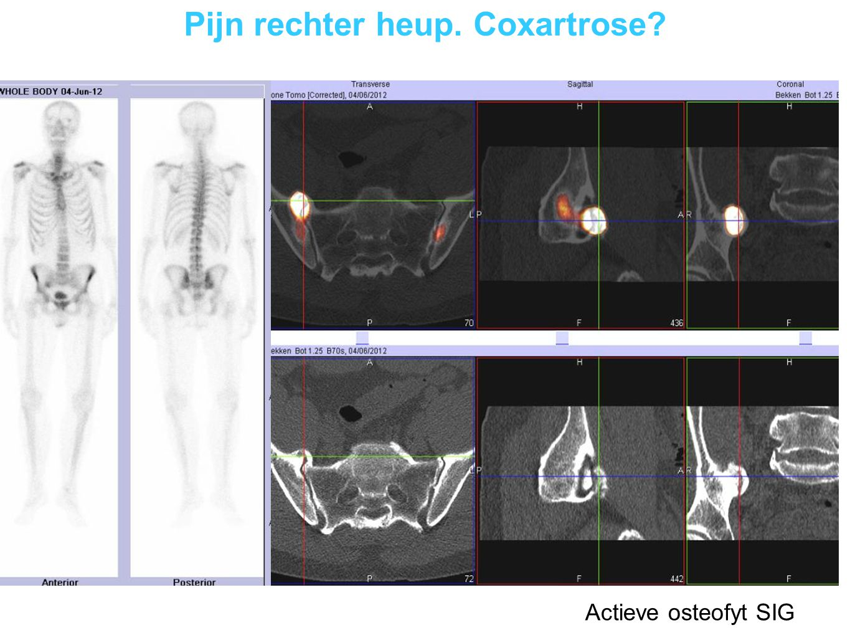 Lumboglutealgie links Actieve osteofyt SIG
