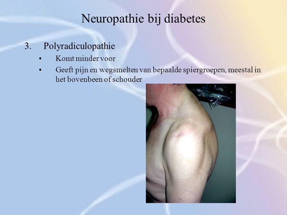 Neuropathie bij diabetes 3.Polyradiculopathie Komt minder voor Geeft pijn en wegsmelten van bepaalde spiergroepen, meestal in het bovenbeen of schoude