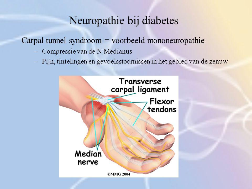 Neuropathie bij diabetes Carpal tunnel syndroom = voorbeeld mononeuropathie –Compressie van de N Medianus –Pijn, tintelingen en gevoelsstoornissen in