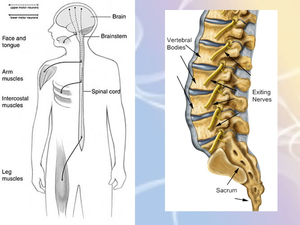 Neuropathie bij diabetes 4.Mononeuropathie = Aantasting van één bepaalde zenuw Door compressie of zuurstoftekort Typische symptomen in het gebied van de aangetaste zenuw: Pijn Tintelingen Voosheid/slapend gevoel Zwelling Verlies aan functie in de spiertjes die door die bepaalde zenuw bezenuwd worden