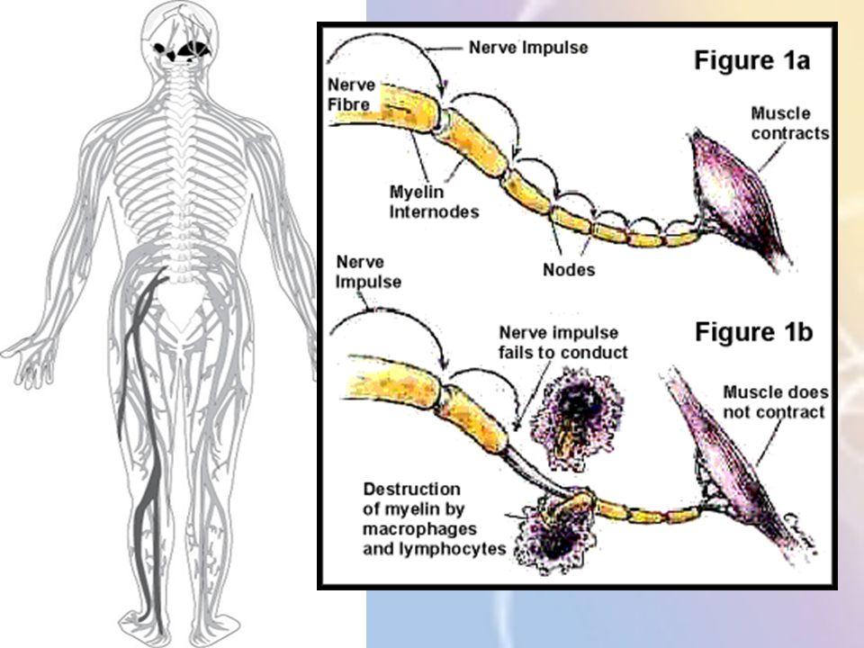 Neuropathie Zenuwwortel: –Is rechtstreekse aftakking van het ruggemerg en splitst zich verder op in andere aparte zenuwen die de doelorganen bezenuwen (spieren, gevoelslichaampjes, bloedvaten…) –Zo aangetast geeft hij typische pijn (uitstraling) al dan niet gepaard gaand met verlamming (voorbeeld: Hernia) Zenuwbanen in arm, been, romp, gelaat… –Motore zenuwen: vervoeren commando's vanuit hersenen en ruggemerg naar de spieren –Sensore zenuwen: vervoeren gevoelsinformatie (pijn, temperatuur, trillingen, aanraking…) vanuit de huid, gewrichten, spieren… naar ruggemerg en hersenen toe –Autonome zenuwen: vervoeren informatie van hersenen en ruggemerg naar verschillende organen om hun normale functie mogelijk te maken.