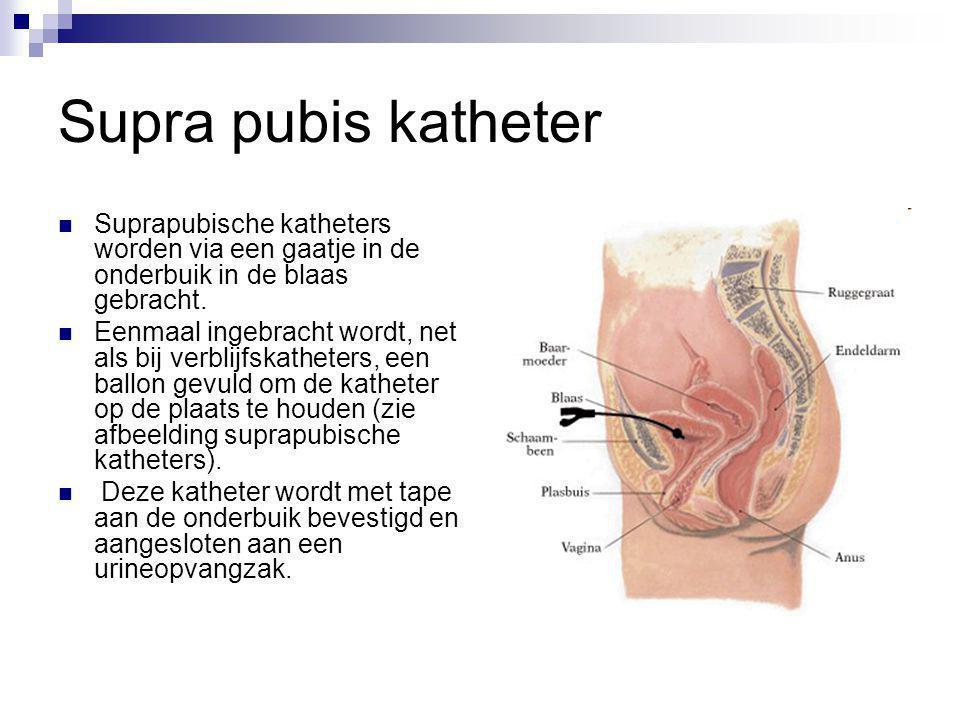 Supra pubis katheter Suprapubische katheters worden via een gaatje in de onderbuik in de blaas gebracht. Eenmaal ingebracht wordt, net als bij verblij