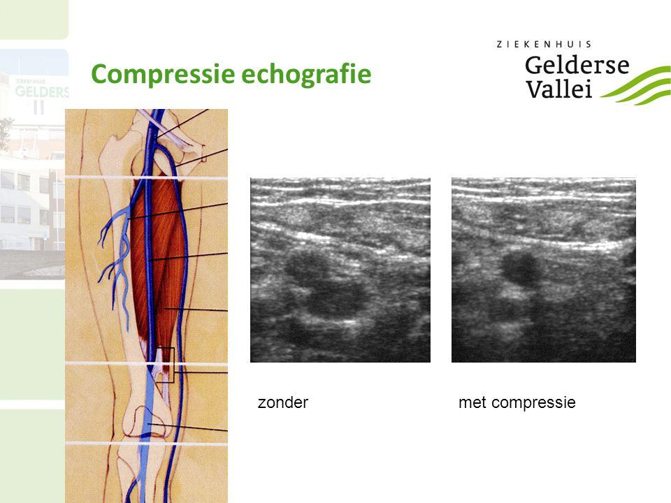 Compressie echografie zondermet compressie