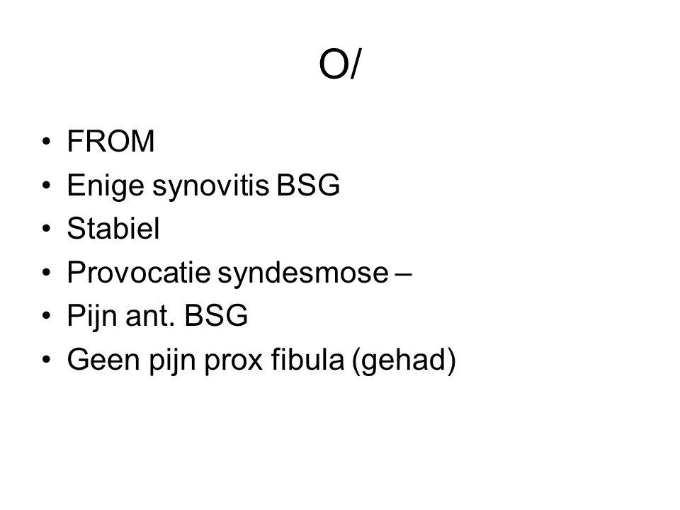 O/ FROM Enige synovitis BSG Stabiel Provocatie syndesmose – Pijn ant. BSG Geen pijn prox fibula (gehad)