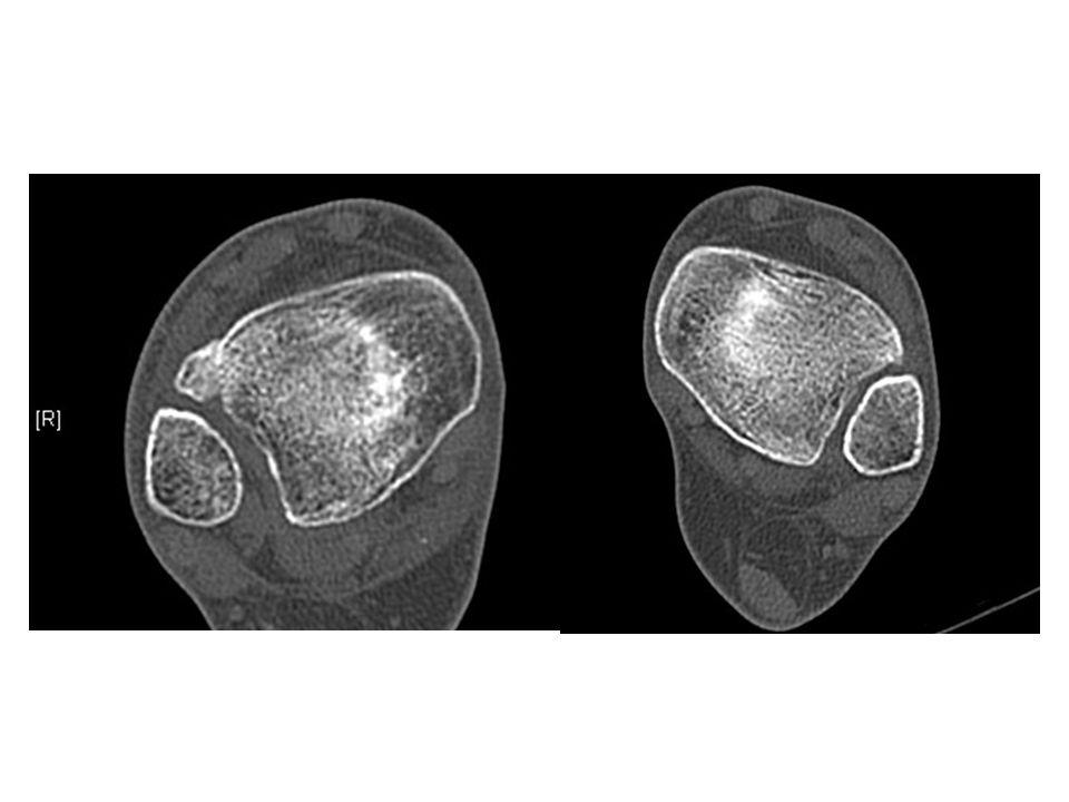 Dus: syndesmose letsel met ant verplaatsing fibula klinisch stabiel pijn/synovitis BSG B/ iom diversen: scopie