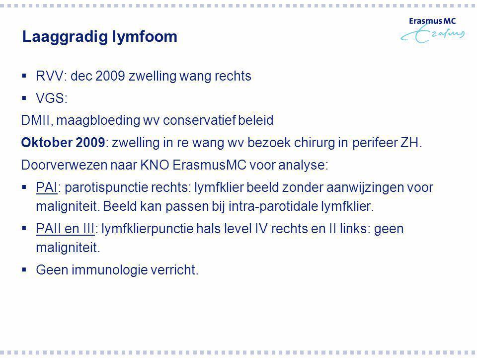  RVV: dec 2009 zwelling wang rechts  VGS: DMII, maagbloeding wv conservatief beleid Oktober 2009: zwelling in re wang wv bezoek chirurg in perifeer