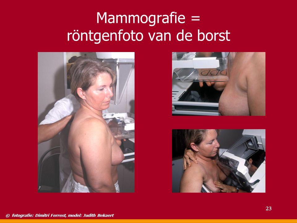 Mammografie = röntgenfoto van de borst © fotografie: Dimitri Ferrest, model: Judith Bekaert 23