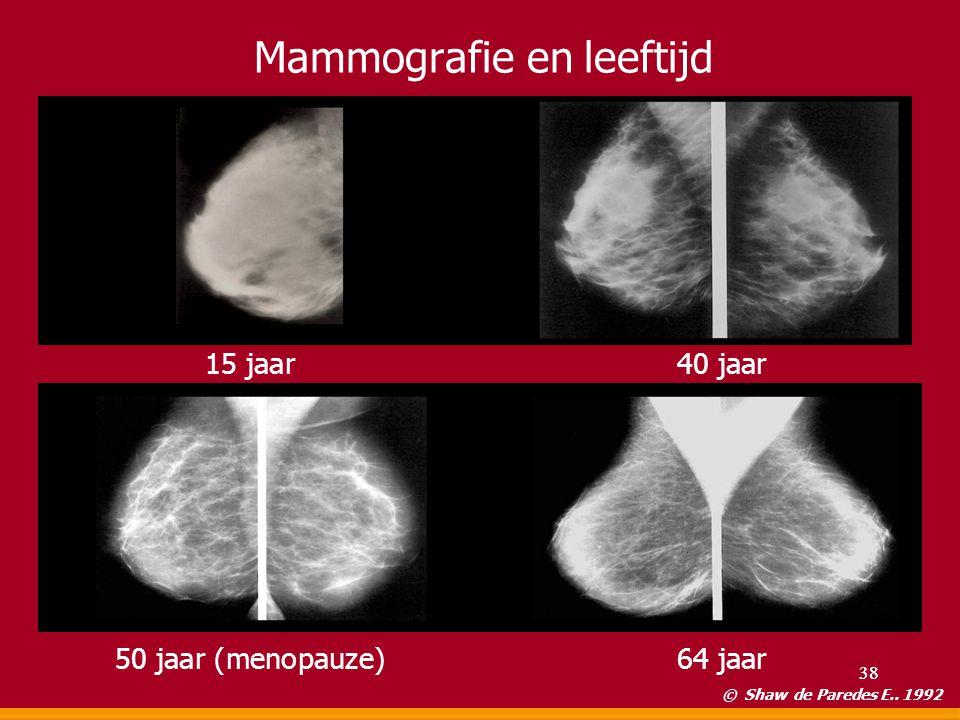 Mammografie en leeftijd © Shaw de Paredes E.. 1992 15 jaar40 jaar 50 jaar (menopauze)64 jaar 38