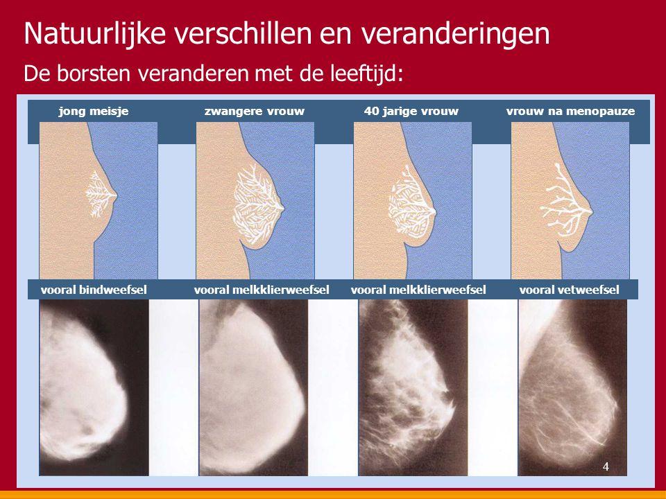 De borsten veranderen met de leeftijd: Natuurlijke verschillen en veranderingen jong meisje zwangere vrouw 40 jarige vrouw vrouw na menopauze vooral b