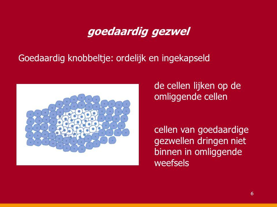 goedaardig gezwel Goedaardig knobbeltje: ordelijk en ingekapseld de cellen lijken op de omliggende cellen cellen van goedaardige gezwellen dringen nie
