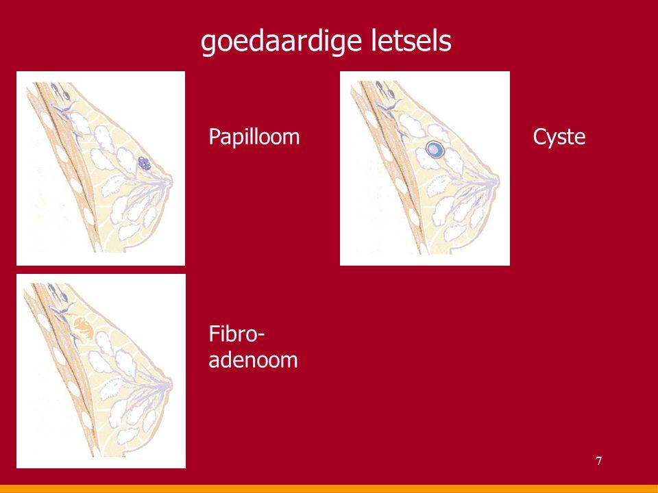 goedaardige letsels Papilloom Fibro- adenoom Cyste 7