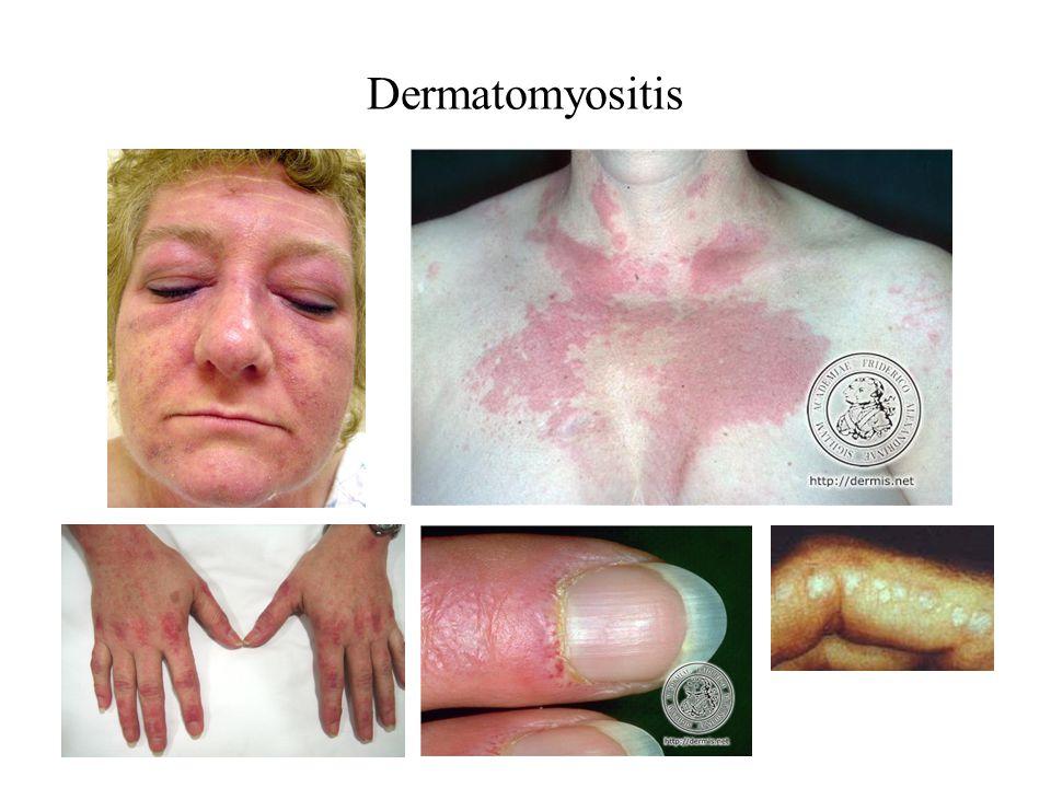Inclusion Body Myositis Debuutleeftijd > 60 jr, man > vrouw (2:1) Geleidelijk progressieve zwakte:vaak asymmetrisch benen > armen proximaal > distaal Myalgie (40%), dysfagie (33-50%) Atrofie en lage spierrekkingsreflexen Associatie met collageenziekten (Sjögren, SLE)