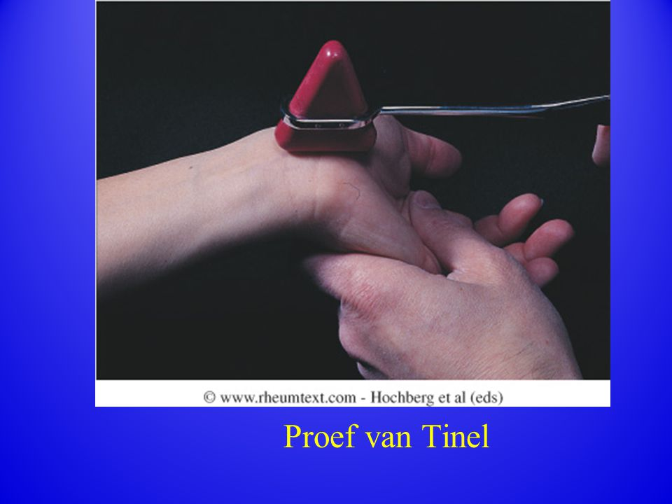Proef van Tinel