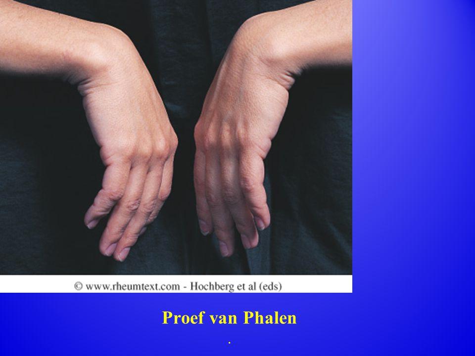 Proef van Phalen.