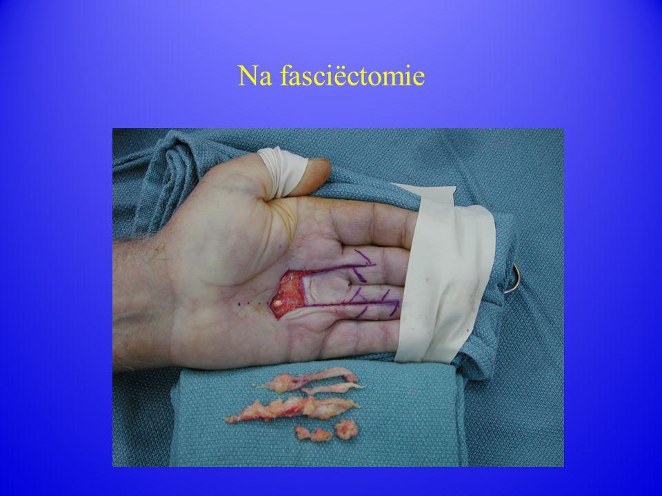 Na fasciëctomie