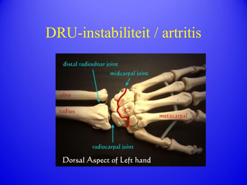 DRU-instabiliteit / artritis