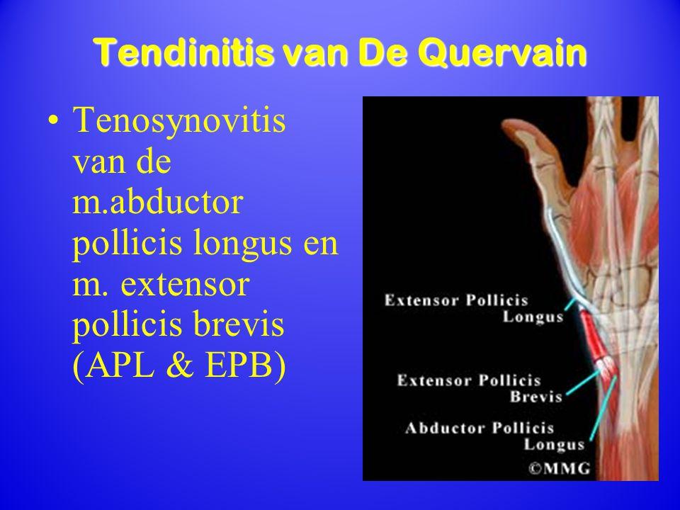 Tendinitis van De Quervain Tenosynovitis van de m.abductor pollicis longus en m. extensor pollicis brevis (APL & EPB)