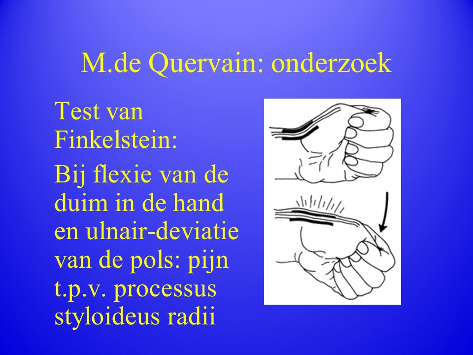 M.de Quervain: onderzoek Test van Finkelstein: Bij flexie van de duim in de hand en ulnair-deviatie van de pols: pijn t.p.v. processus styloideus radi