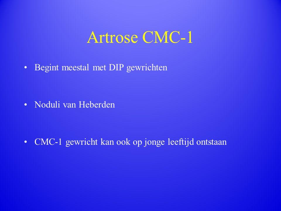 Artrose CMC-1 Begint meestal met DIP gewrichten Noduli van Heberden CMC-1 gewricht kan ook op jonge leeftijd ontstaan