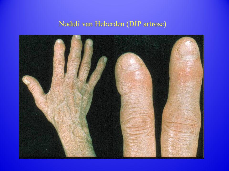 Noduli van Heberden (DIP artrose)