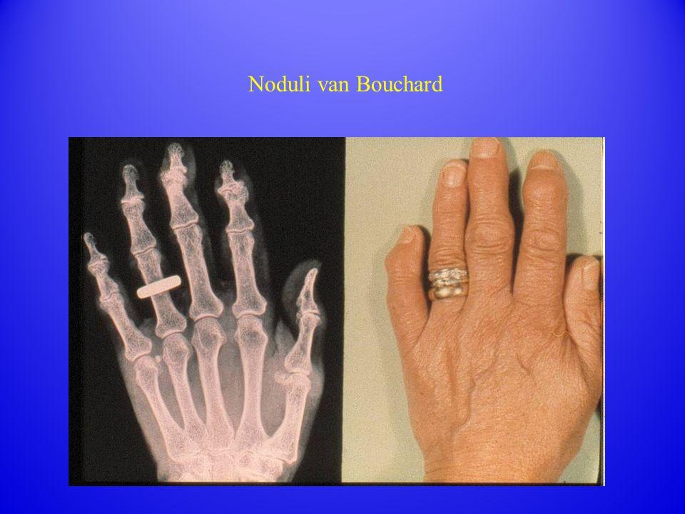 Noduli van Bouchard