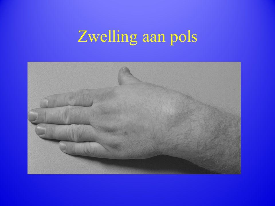 Zwelling aan pols