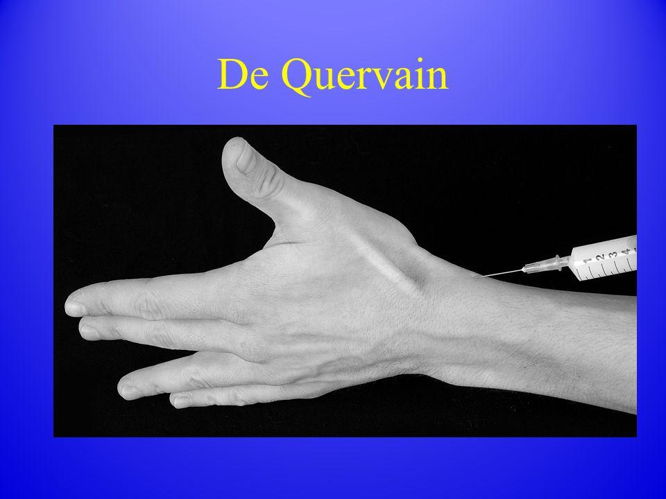 De Quervain