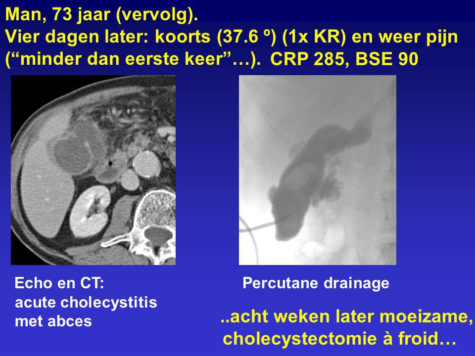 """Man, 73 jaar (vervolg). Vier dagen later: koorts (37.6 º) (1x KR) en weer pijn (""""minder dan eerste keer""""…). Echo en CT: acute cholecystitis met abces"""