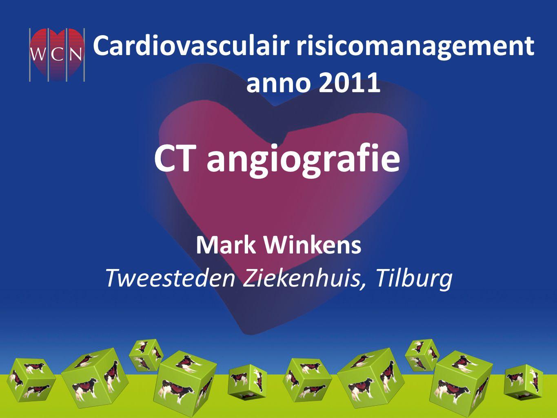 CT angiografie Mark Winkens Tweesteden Ziekenhuis, Tilburg Cardiovasculair risicomanagement anno 2011