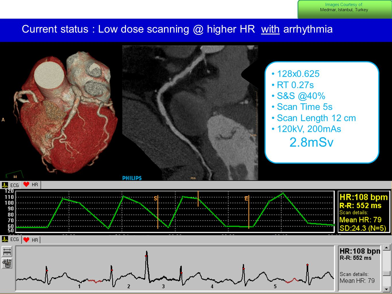 3 3 Images Courtesy of: Medmar, Istanbul, Turkey Current status : Low dose scanning @ higher HR with arrhythmia 128x0.625 RT 0.27s S&S @40% Scan Time 5s Scan Length 12 cm 120kV, 200mAs 2.8mSv