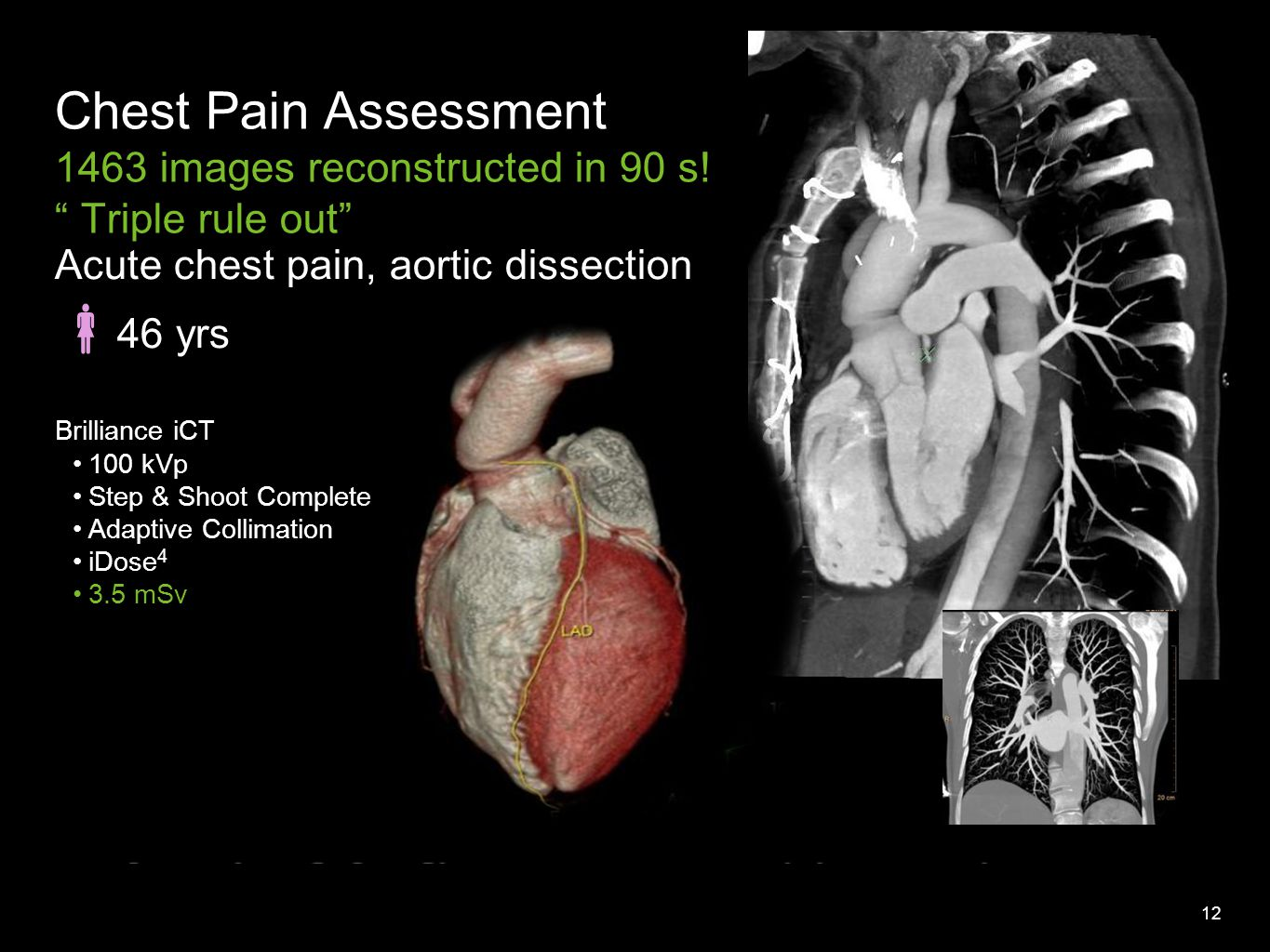 12 Acute chest pain, aortic dissection  46 yrs Brilliance iCT 100 kVp Step & Shoot Complete Adaptive Collimation iDose 4 3.5 mSv Chest Pain Assessment 1463 images reconstructed in 90 s.