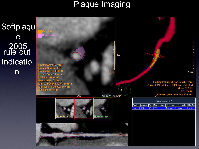 Plaque Imaging Softplaqu e 2005 rule out indicatio n