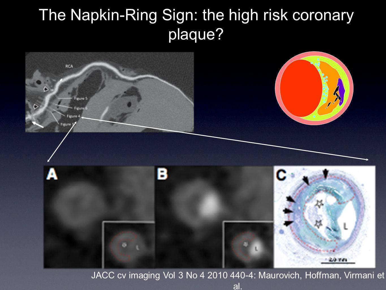 The Napkin-Ring Sign: the high risk coronary plaque? JACC cv imaging Vol 3 No 4 2010 440-4: Maurovich, Hoffman, Virmani et al.