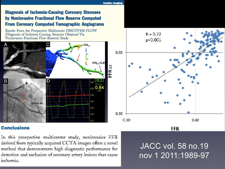 JACC vol. 58 no.19 nov 1 2011:1989-97