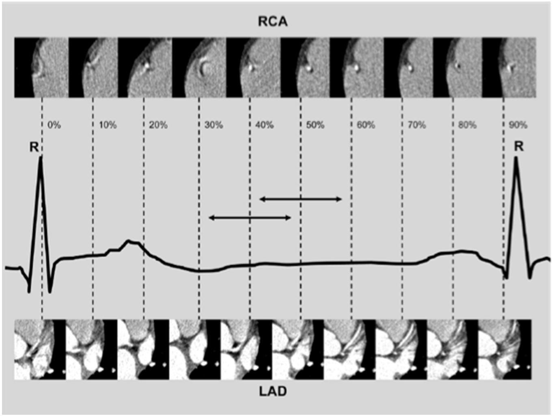 Klass et al.; Int J Cardiovasc Imaging 2010