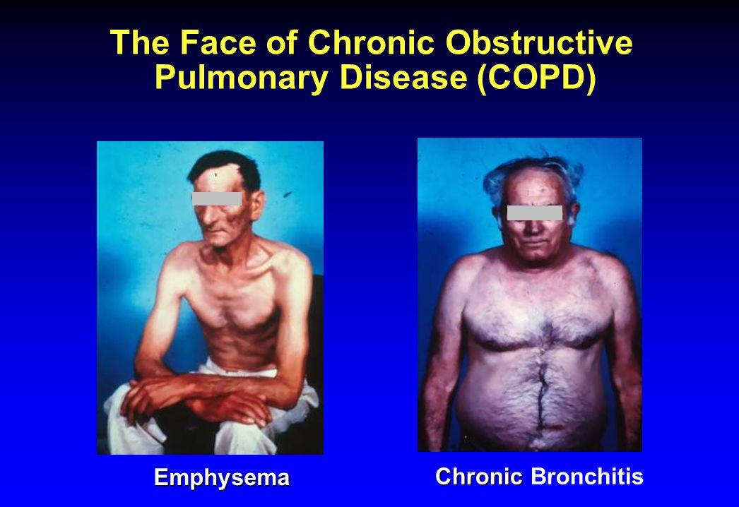 Richtlijnen en voorkeuren vd pt met ernstig COPD ivm toekomstig medisch handelen Weinig pten hebben gesprekken over eindfase met hun zorgverleners WHO COPD richtlijnen geven geen aanbevelingen over eindfasezorg Belangrijke communicatiebarrières bij COPD Pten uiten ook opportuniteiten ivm eindfasediscussie: 'facilitators' Communicatie en 'advance directives' De realiteit