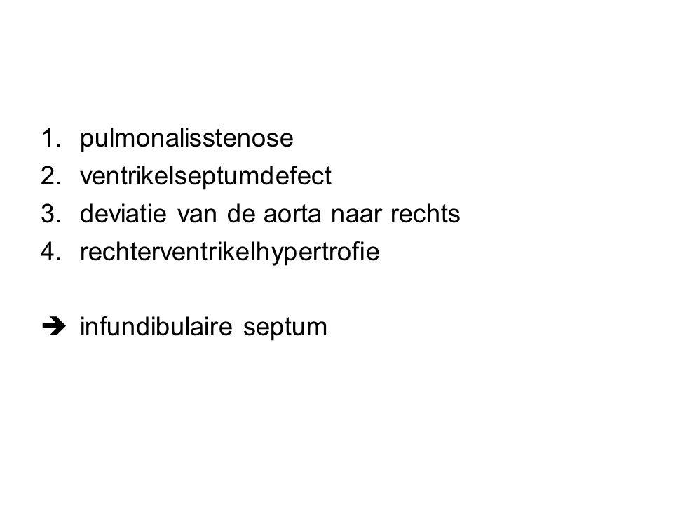 1.pulmonalisstenose 2.ventrikelseptumdefect 3.deviatie van de aorta naar rechts 4.rechterventrikelhypertrofie  infundibulaire septum
