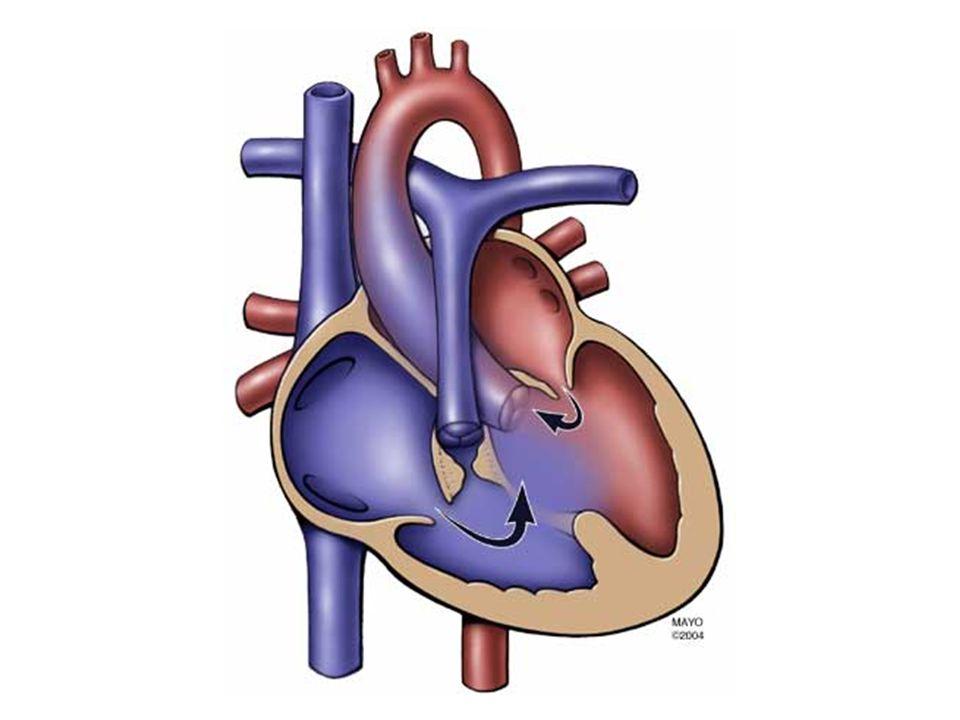 X-Thorax –corfiguur –concaaf pulmonalis segment –rechts gelegen aorta (25 %) –vaattekening