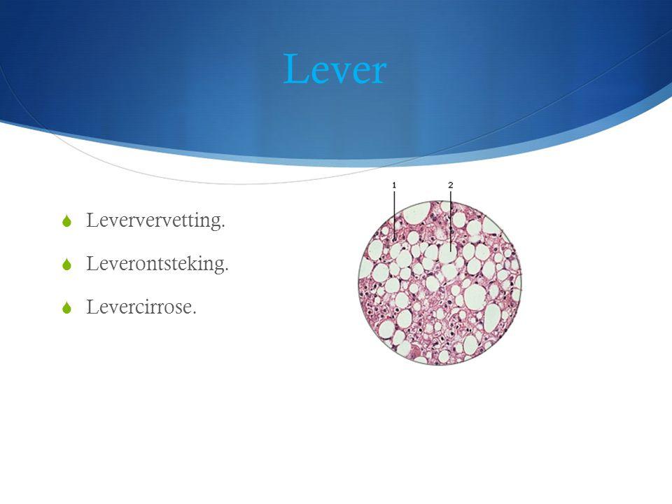 Lever  Leververvetting.  Leverontsteking.  Levercirrose.