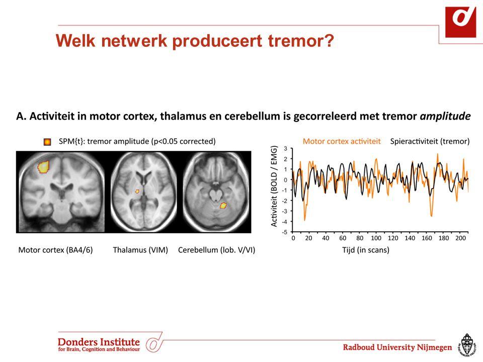 Welk netwerk produceert tremor?