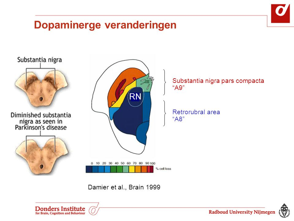 "RN Substantia nigra pars compacta ""A9"" Retrorubral area ""A8"" Damier et al., Brain 1999 Dopaminerge veranderingen"