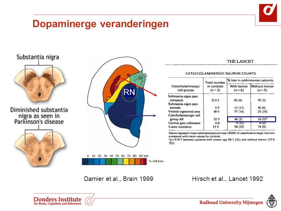 RN Damier et al., Brain 1999 Hirsch et al., Lancet 1992 Dopaminerge veranderingen