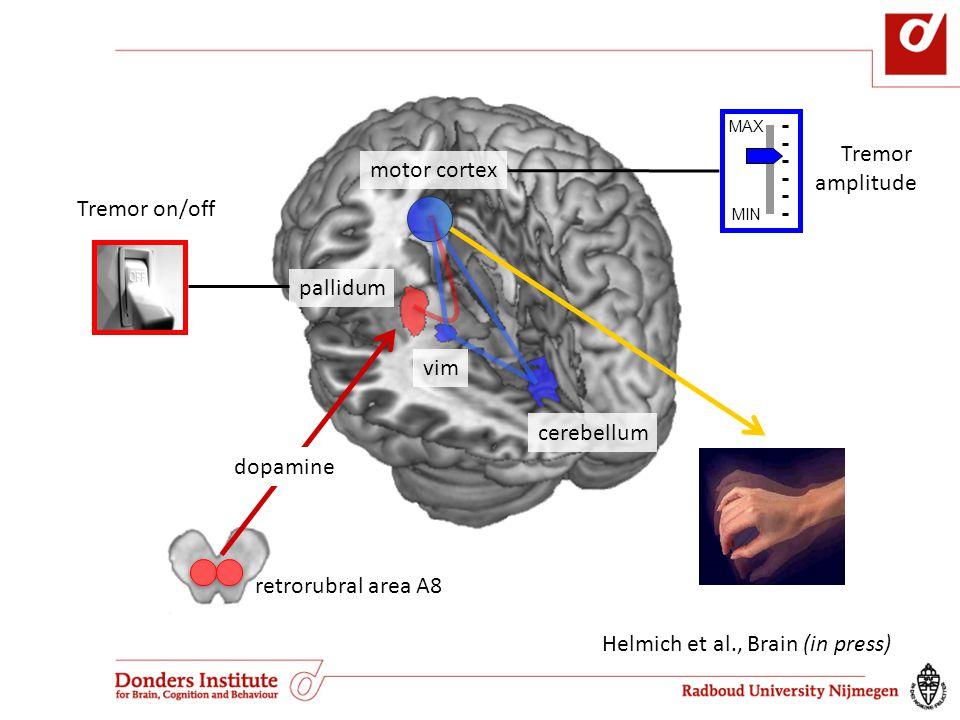 motor cortex cerebellum vim pallidum retrorubral area A8 Tremor on/off Tremor amplitude MAX MIN dopamine Helmich et al., Brain (in press)