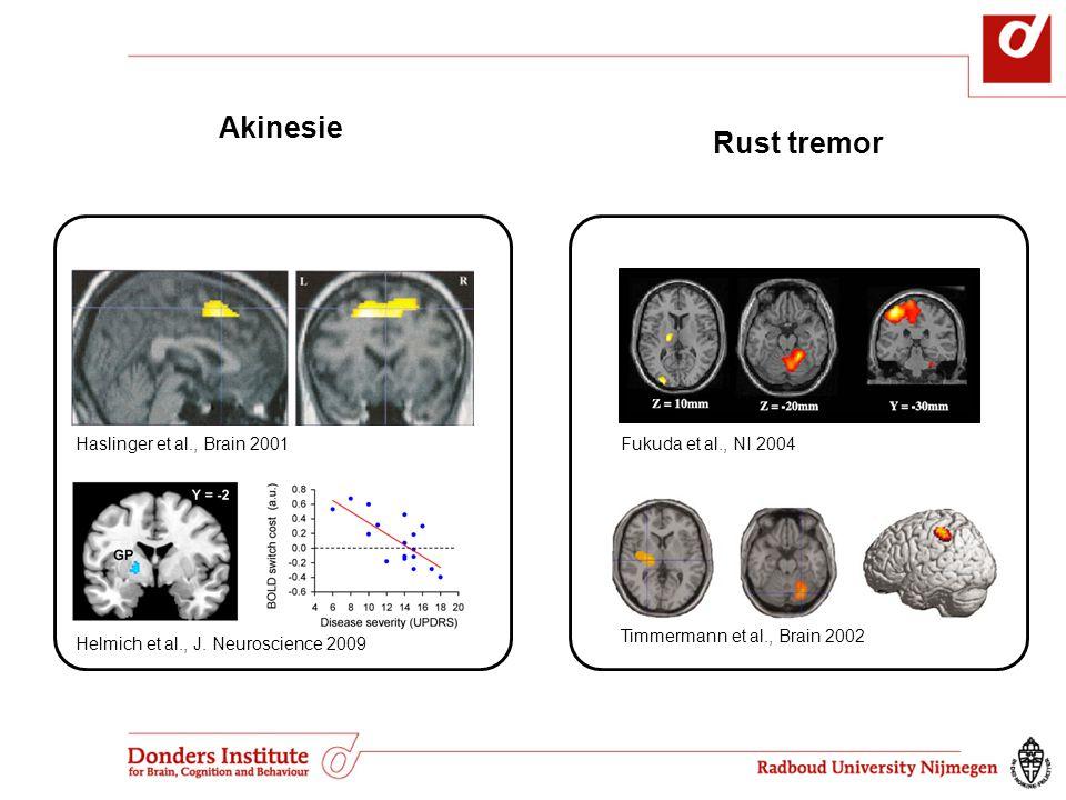 Haslinger et al., Brain 2001 Helmich et al., J. Neuroscience 2009 Rust tremor Akinesie Fukuda et al., NI 2004 Timmermann et al., Brain 2002