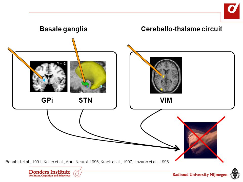 GPiSTNVIM Cerebello-thalame circuitBasale ganglia Benabid et al., 1991; Koller et al., Ann. Neurol. 1996, Krack et al., 1997; Lozano et al., 1995