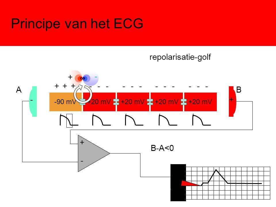 Principe van het ECG -90 mV+20 mV -+ - + AB B-A<0 + - + + + - - - - - - - - - - - - repolarisatie-golf
